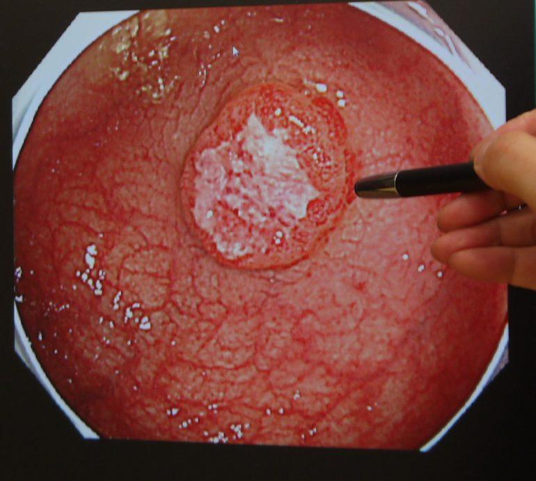 ポリープ 性行為 後 大腸 切除